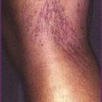 Tratamentul cu laser IPL al venectaziilor